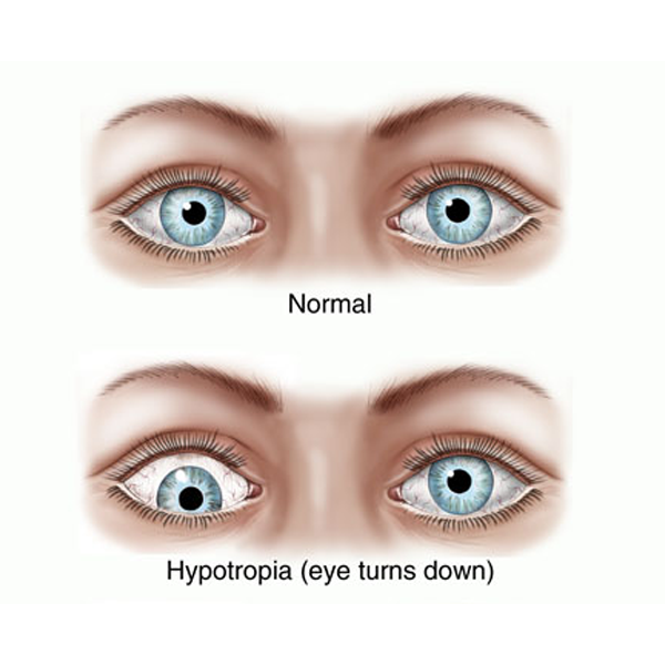 A lazy with eye people How to